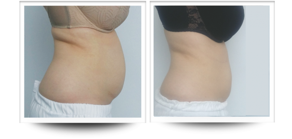 stomach, body contouring, Accent Prime