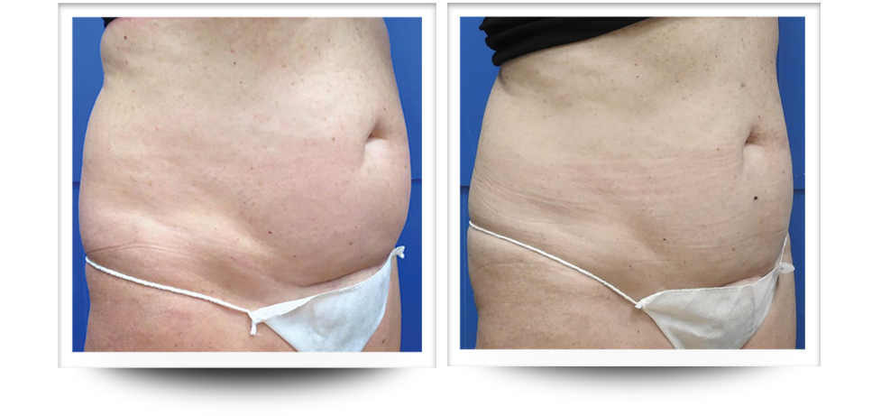 Body contouring by Accent prime