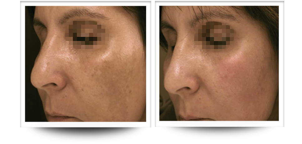 Skin resurfacing, Accent Prime