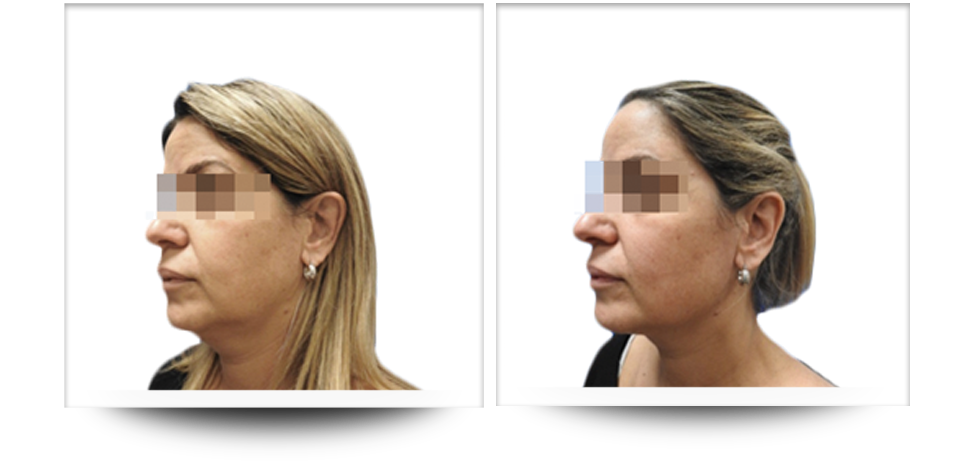 Accent Prime, Skin tightening