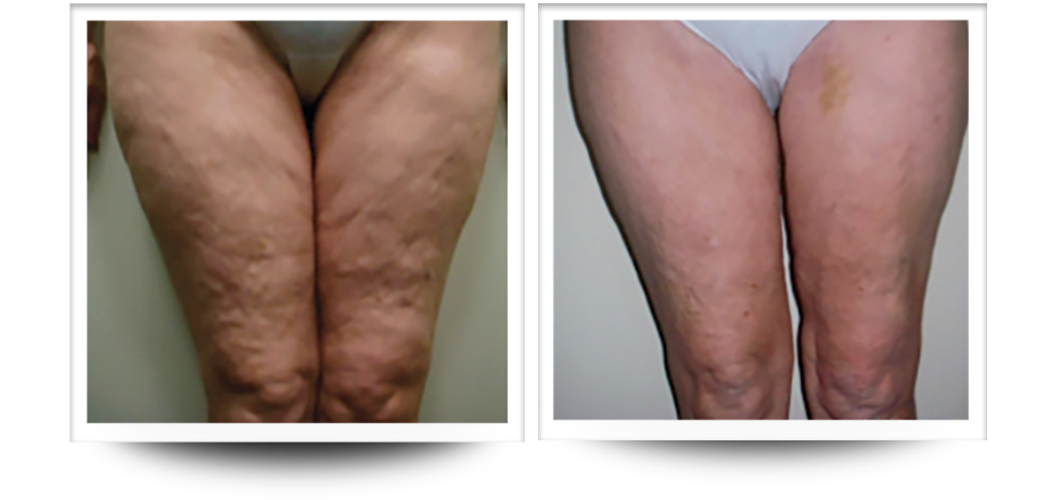 Cellulite reduction, Accent prime