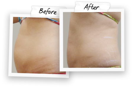 body contouring, Accent prime, cellulite reduction