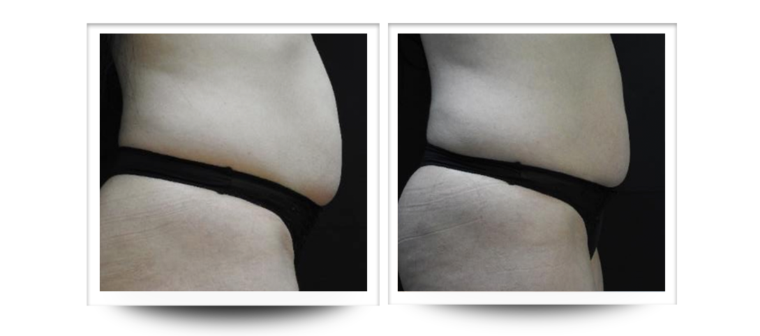 Body contouring belly, Accent Prime