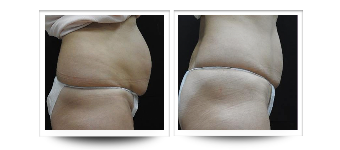 Accentuate, Body Contouring